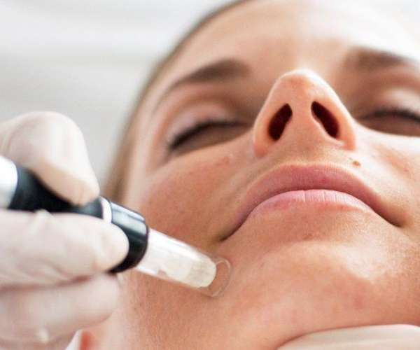microneedle treatment charlotte SkinPen Vampire Treatment